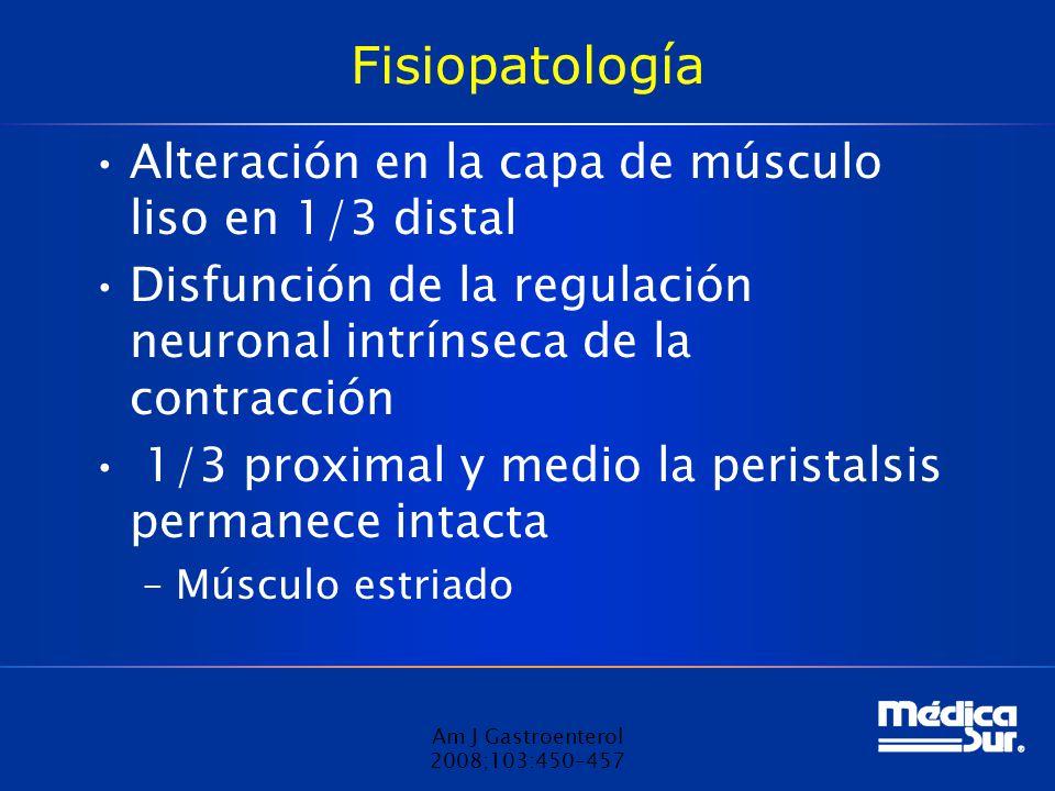 Fisiopatología Alteración en la capa de músculo liso en 1/3 distal