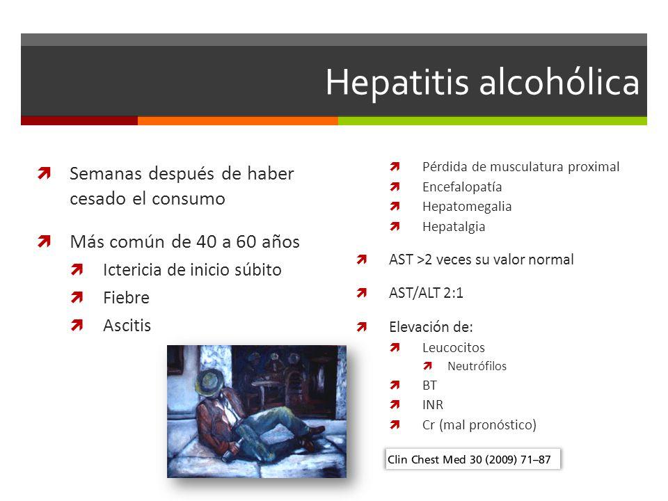 Hepatitis alcohólica Semanas después de haber cesado el consumo