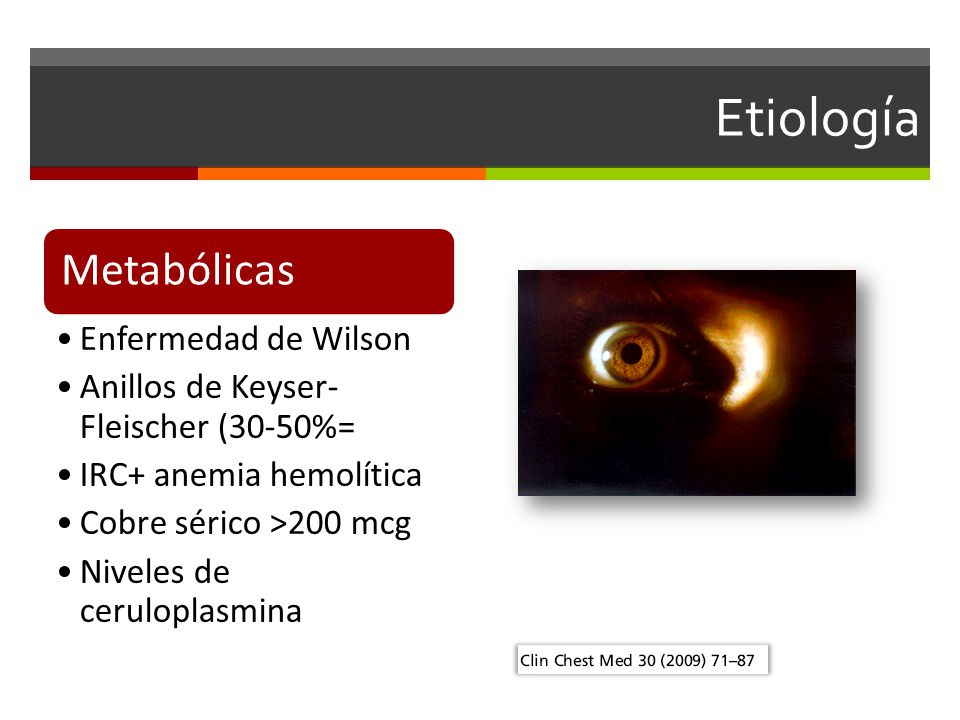 Etiología Metabólicas Enfermedad de Wilson