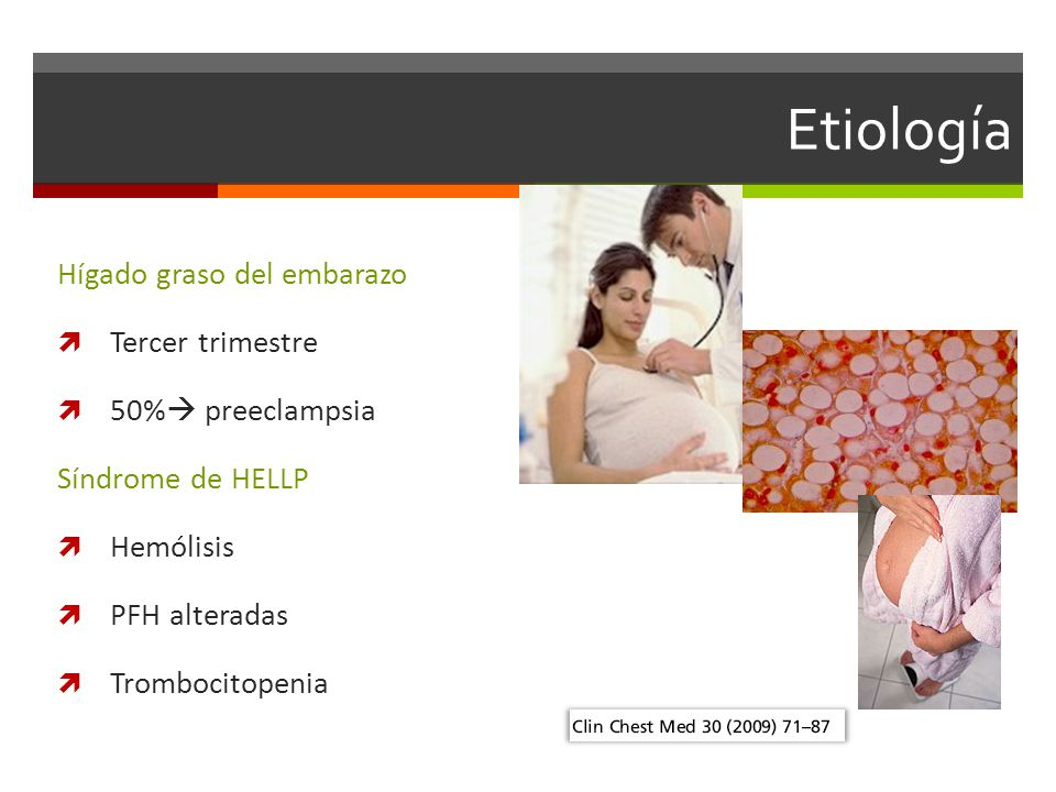 Etiología Hígado graso del embarazo Tercer trimestre 50% preeclampsia