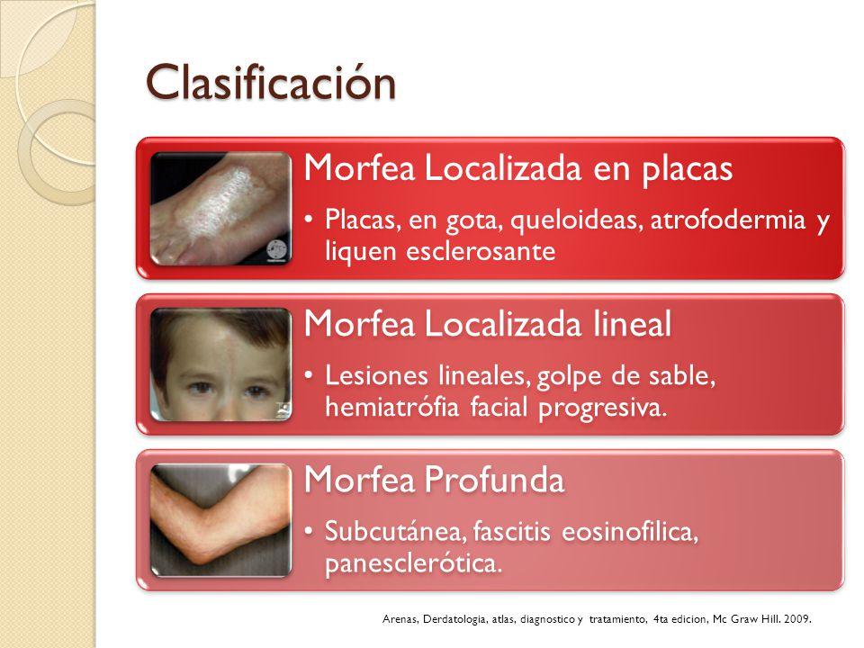 Clasificación Morfea Localizada en placas. Placas, en gota, queloideas, atrofodermia y liquen esclerosante.