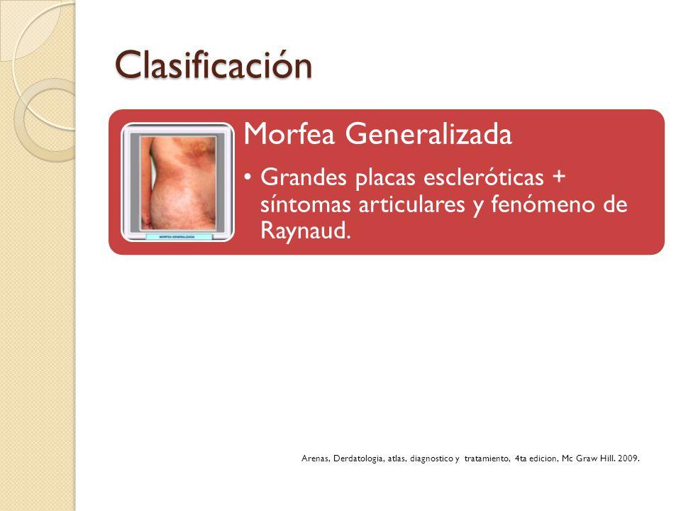 Clasificación Morfea Generalizada. Grandes placas escleróticas + síntomas articulares y fenómeno de Raynaud.