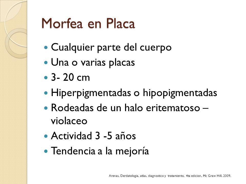 Morfea en Placa Cualquier parte del cuerpo Una o varias placas