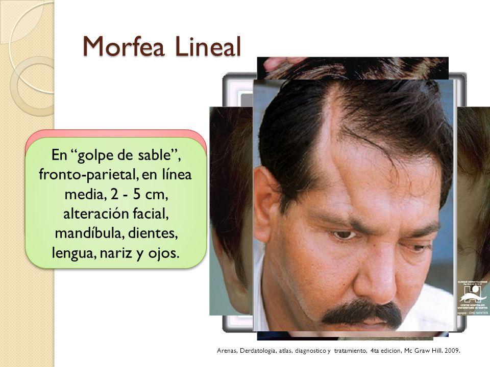 Morfea Lineal Lineal o monomiélica: a lo largo de la extremidad que dificulta su crecimiento.