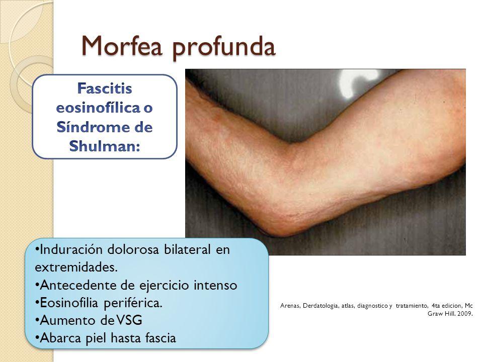Fascitis eosinofílica o Síndrome de Shulman: