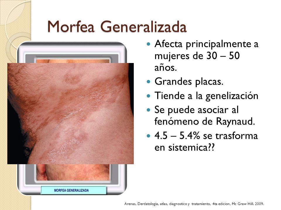 Morfea Generalizada Afecta principalmente a mujeres de 30 – 50 años.