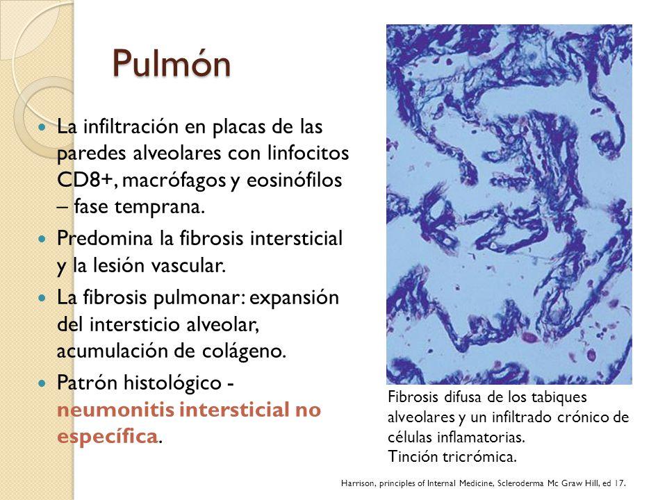 Pulmón La infiltración en placas de las paredes alveolares con linfocitos CD8+, macrófagos y eosinófilos – fase temprana.