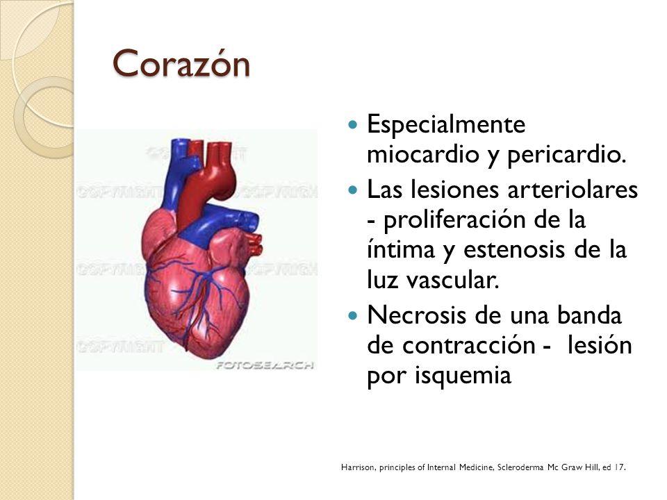 Corazón Especialmente miocardio y pericardio.