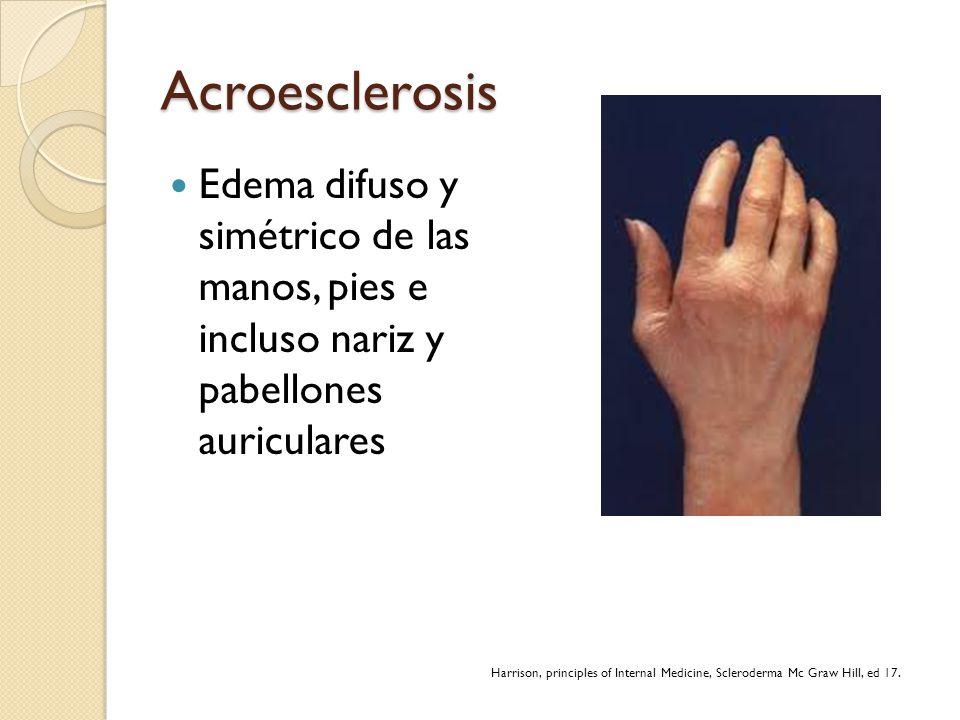 Acroesclerosis Edema difuso y simétrico de las manos, pies e incluso nariz y pabellones auriculares.