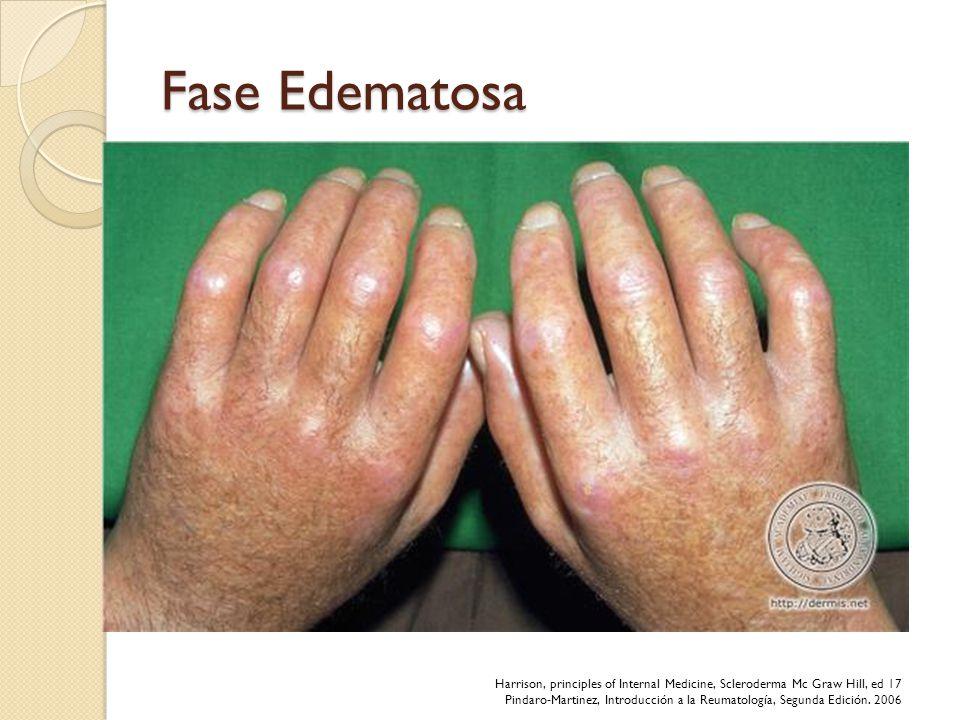 Fase Edematosa Afecta dedos de manos, puede afectar antebrazos, cara, piernas y pies. Poco doloroso, bilateral y simétrico.