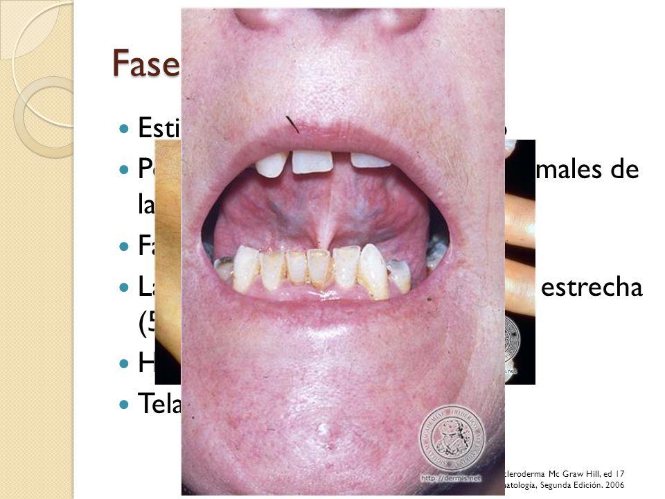 Fase Indurativa Estiramiento y endurecimiento