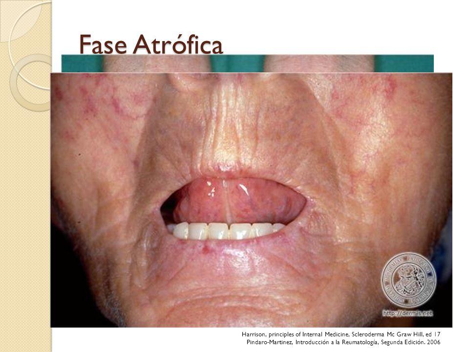 Fase Atrófica Adelgazamiento de la piel, principalmente sobre articulaciones. Piel vulnerable a traumatismos – ulceras.