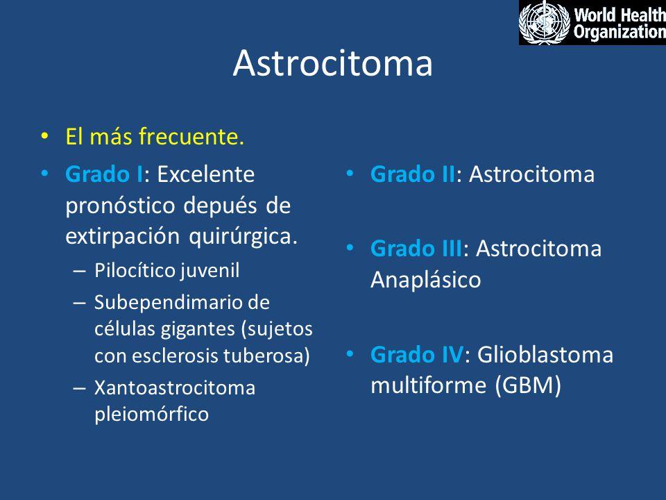 Astrocitoma El más frecuente.