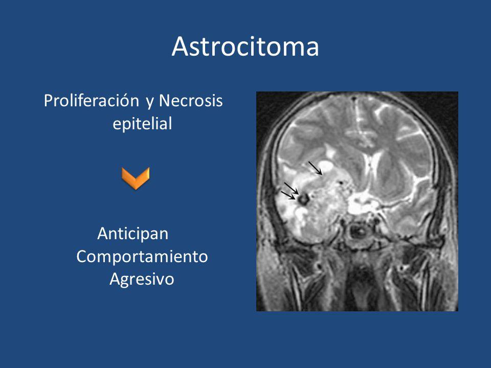 Proliferación y Necrosis epitelial Anticipan Comportamiento Agresivo