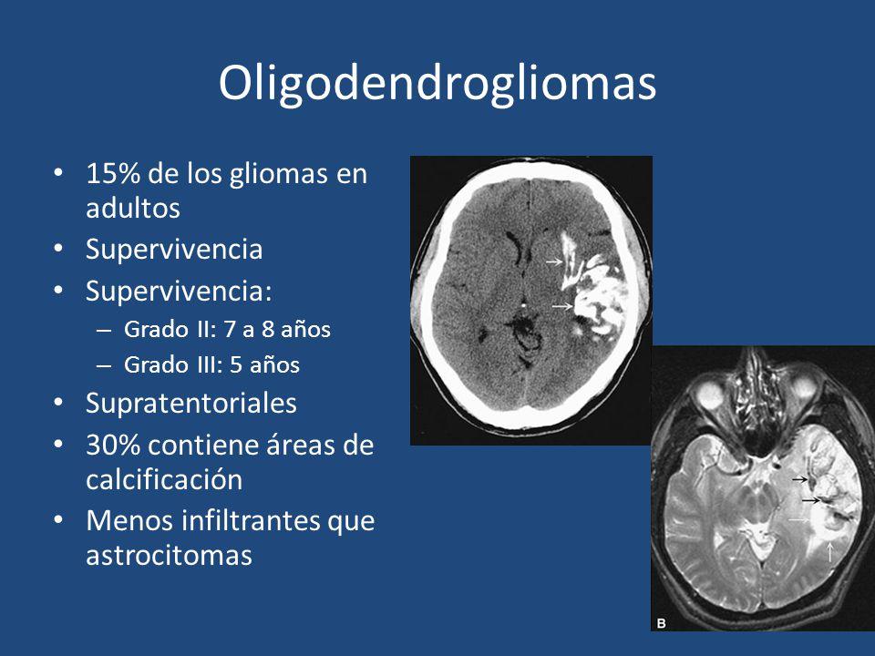 Oligodendrogliomas 15% de los gliomas en adultos Supervivencia