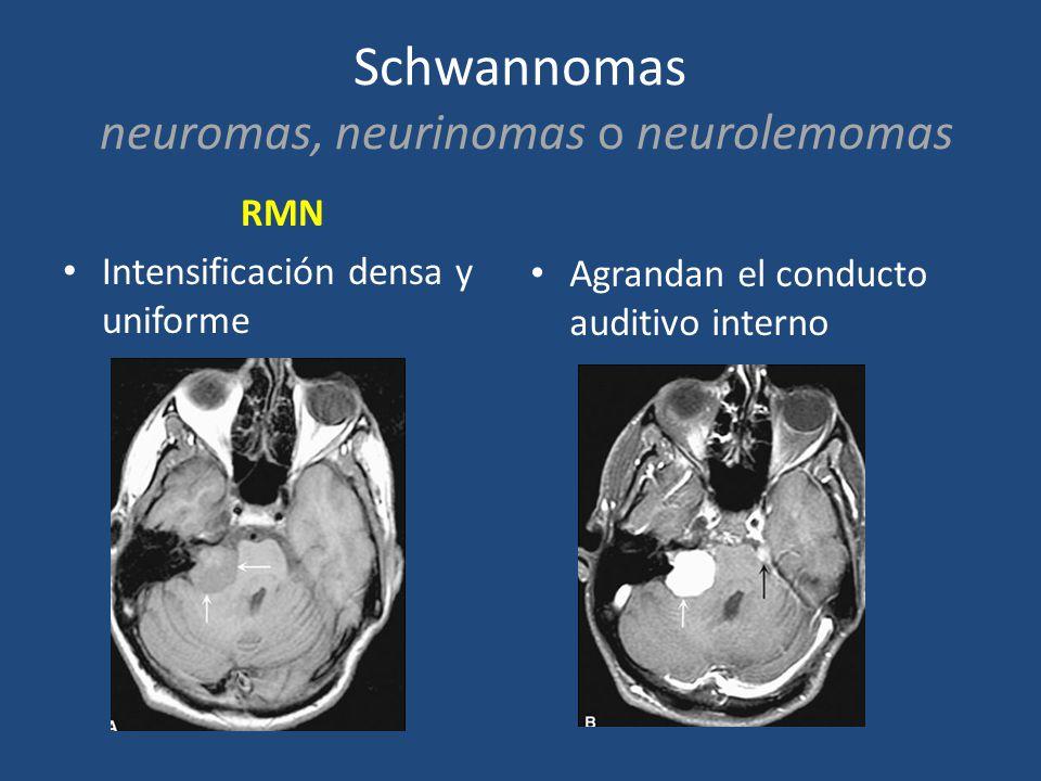 Schwannomas neuromas, neurinomas o neurolemomas