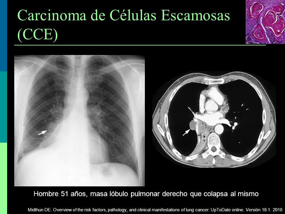 Carcinoma de Células Escamosas (CCE)