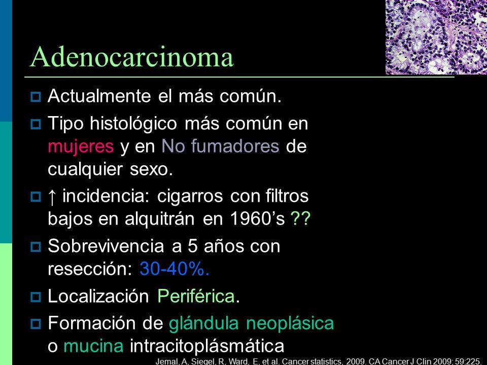 Adenocarcinoma Actualmente el más común.