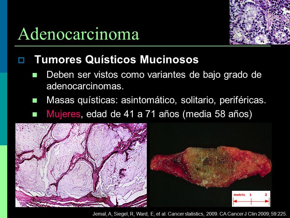 Adenocarcinoma Tumores Quísticos Mucinosos