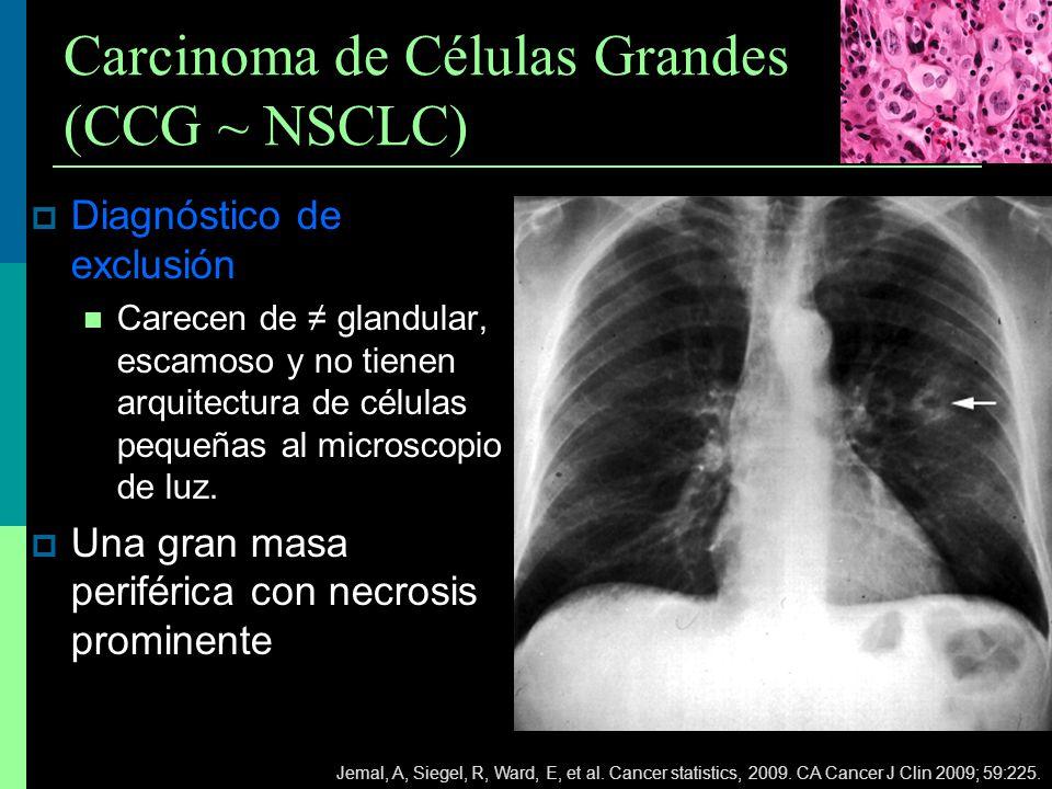 Carcinoma de Células Grandes (CCG ~ NSCLC)