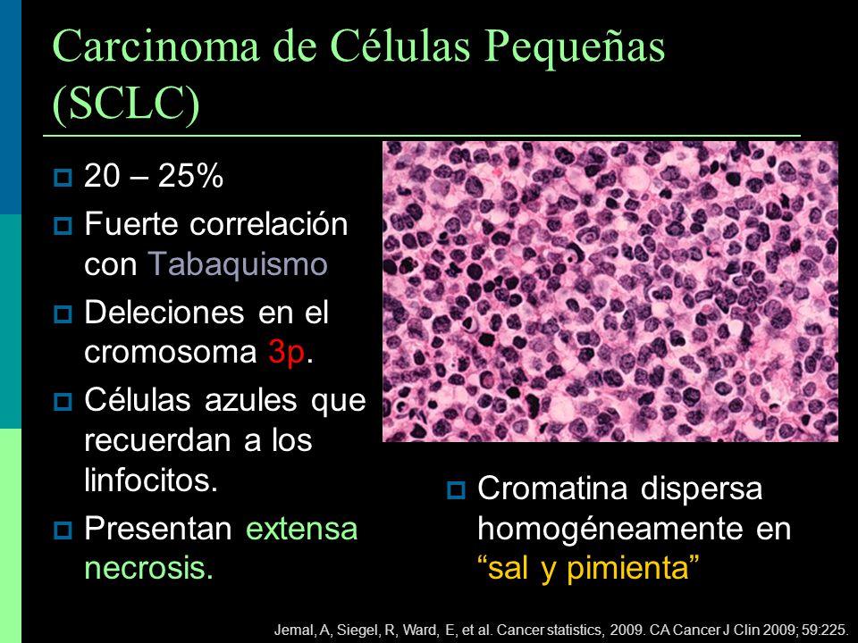 Carcinoma de Células Pequeñas (SCLC)
