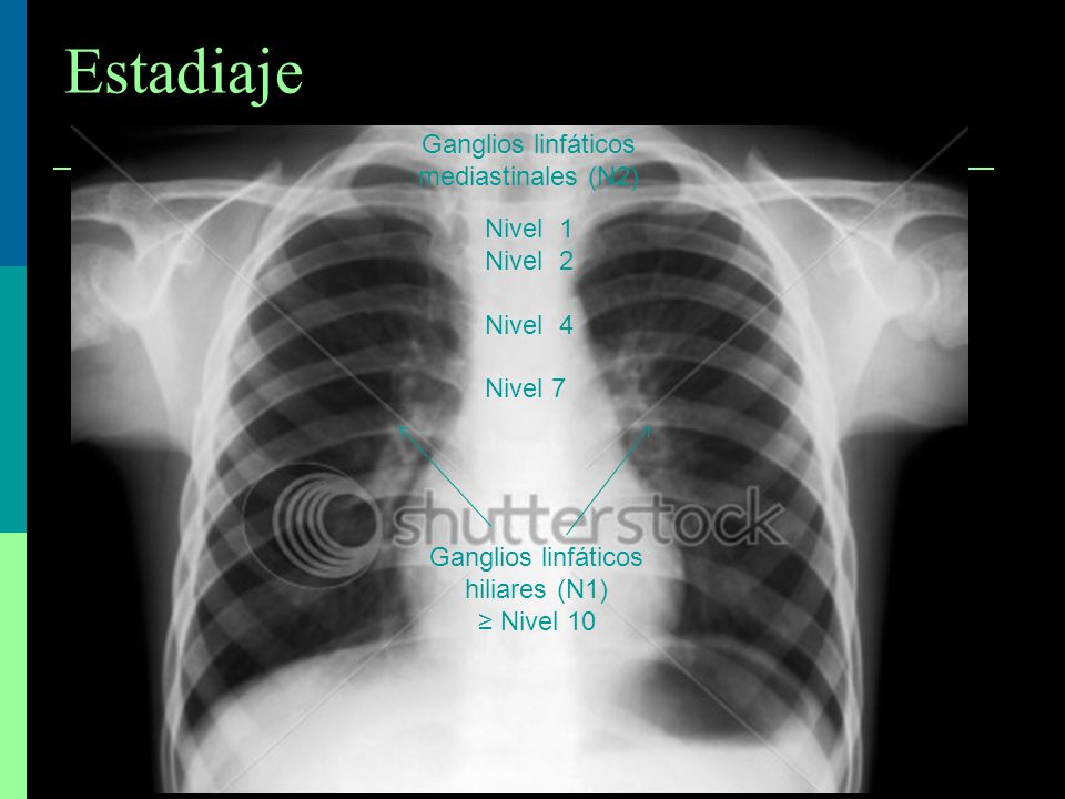 Estadiaje Ganglios linfáticos mediastinales (N2) Nivel 1 Nivel 2