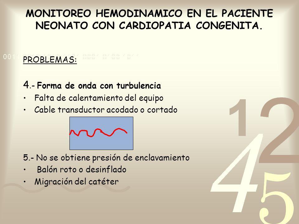 4.- Forma de onda con turbulencia