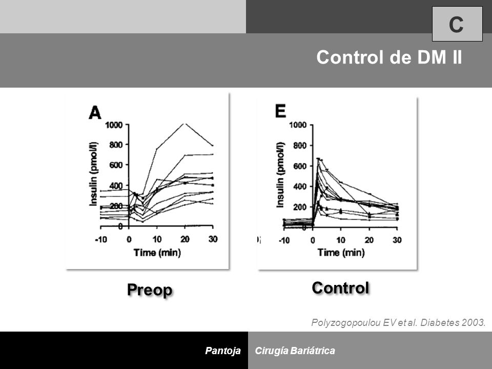 C Control de DM II Control Preop