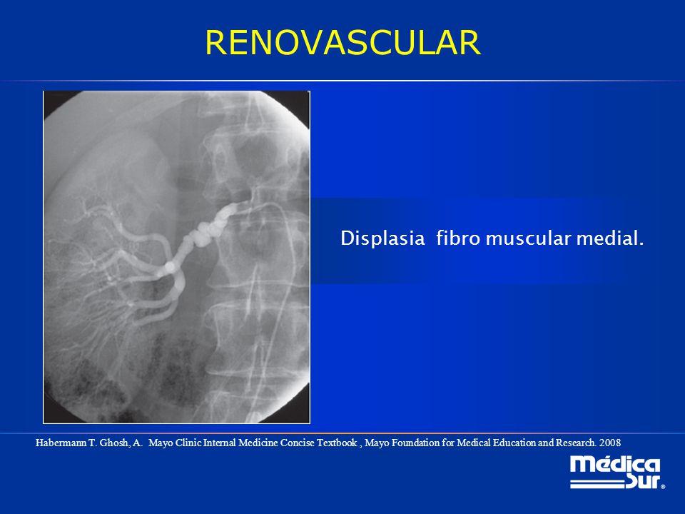 Displasia fibro muscular medial.