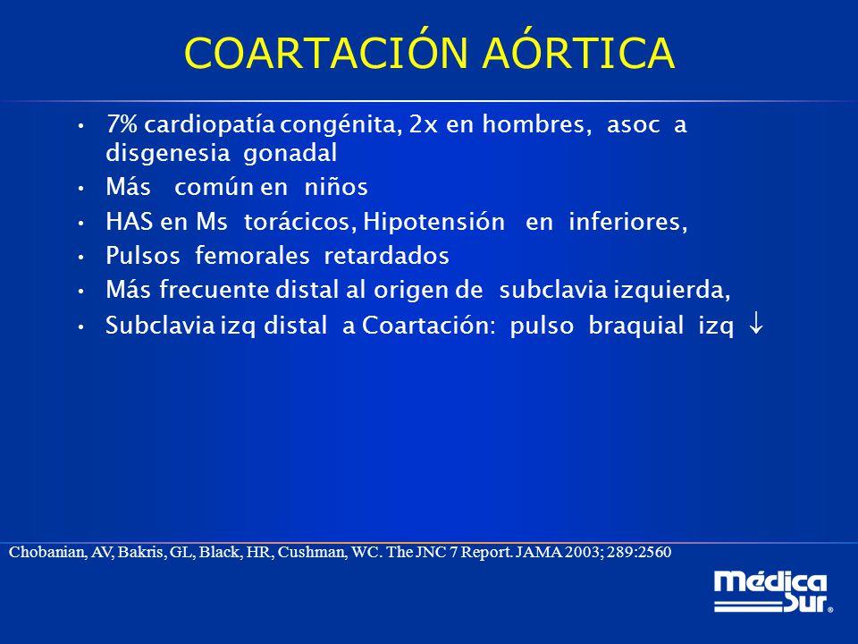 COARTACIÓN AÓRTICA 7% cardiopatía congénita, 2x en hombres, asoc a disgenesia gonadal. Más común en niños.