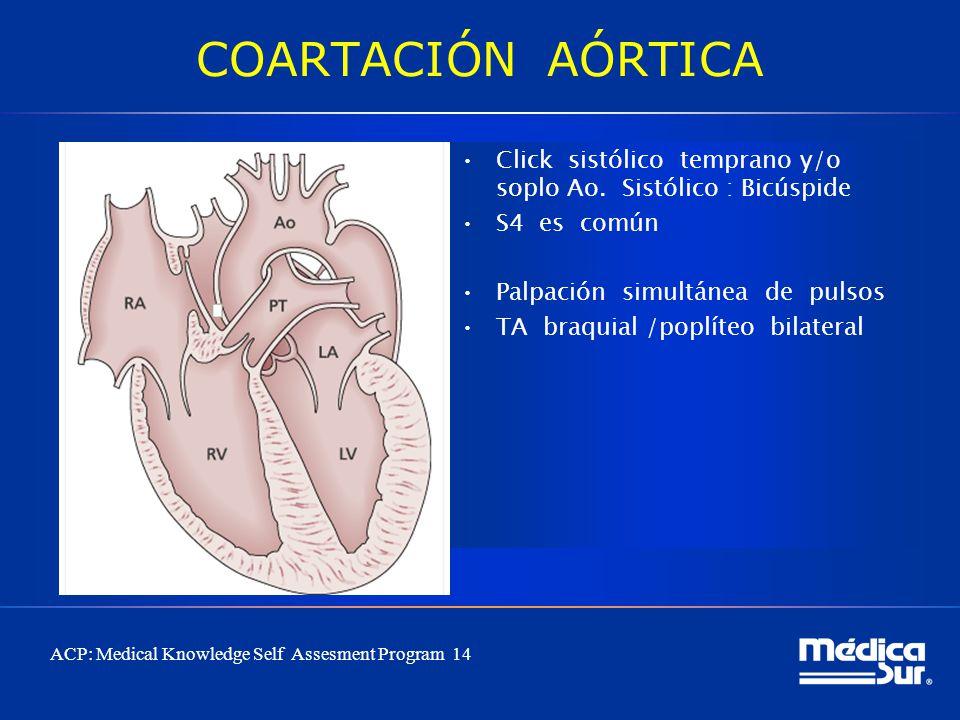 COARTACIÓN AÓRTICA Click sistólico temprano y/o soplo Ao. Sistólico : Bicúspide. S4 es común.