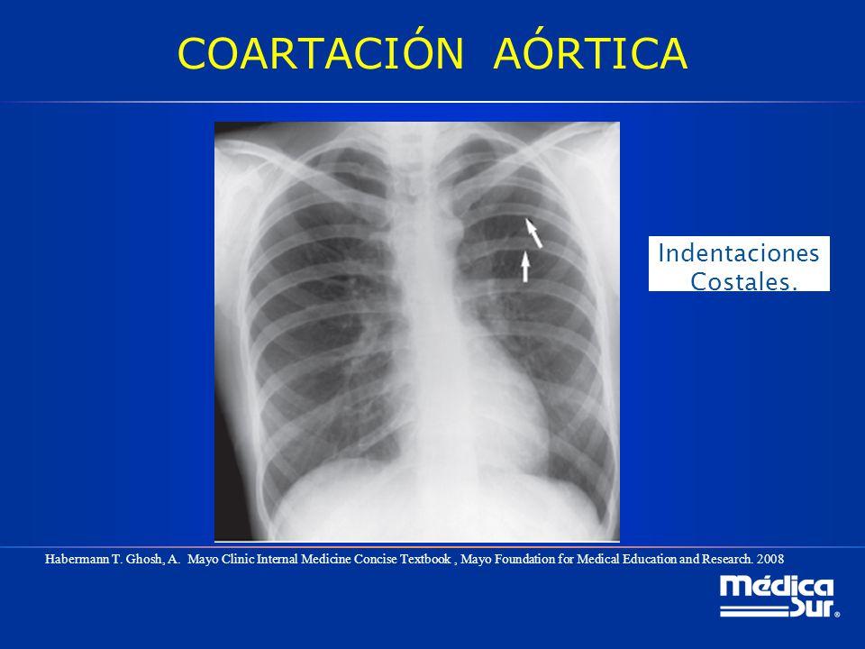 COARTACIÓN AÓRTICA Indentaciones Costales.