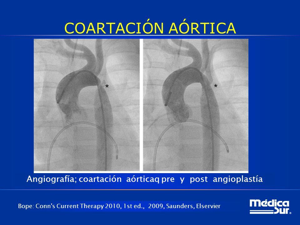 Angiografía; coartación aórticaq pre y post angioplastía