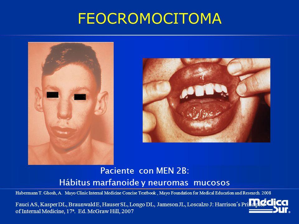Paciente con MEN 2B: Hábitus marfanoide y neuromas mucosos