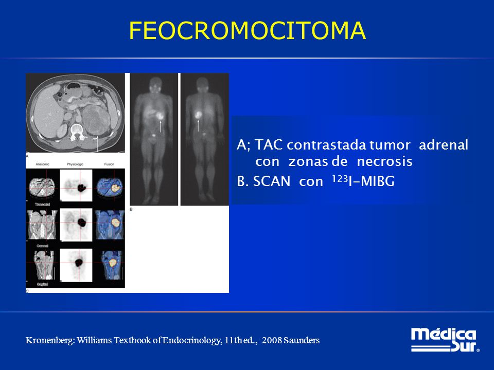 FEOCROMOCITOMA A; TAC contrastada tumor adrenal con zonas de necrosis B. SCAN con 123I-MIBG