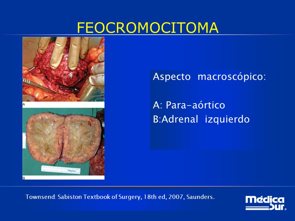 FEOCROMOCITOMA Aspecto macroscópico: A: Para-aórtico B:Adrenal izquierdo Townsend: Sabiston Textbook of Surgery, 18th ed, 2007, Saunders.