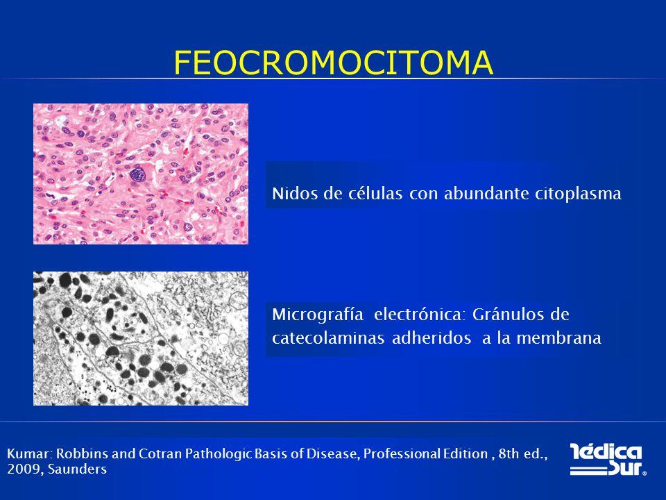 FEOCROMOCITOMA Nidos de células con abundante citoplasma