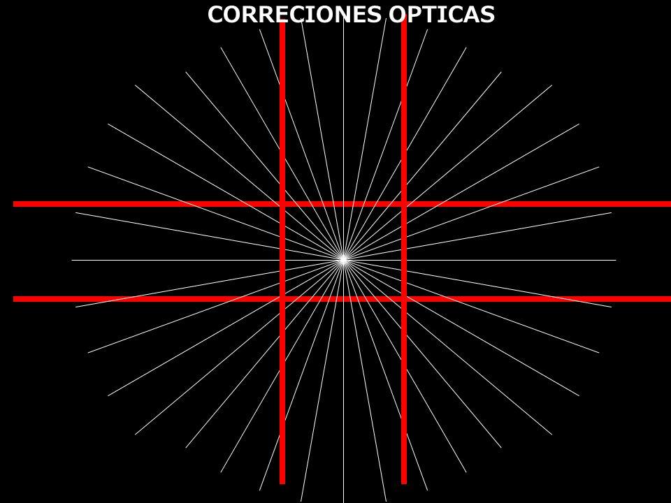 CORRECIONES OPTICAS