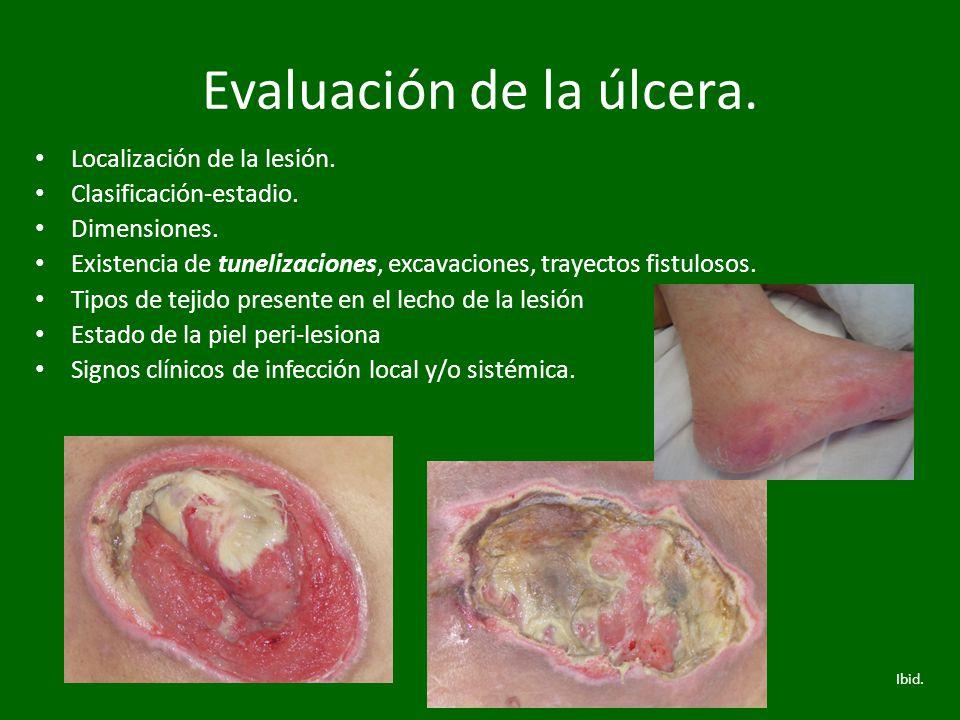 Evaluación de la úlcera.