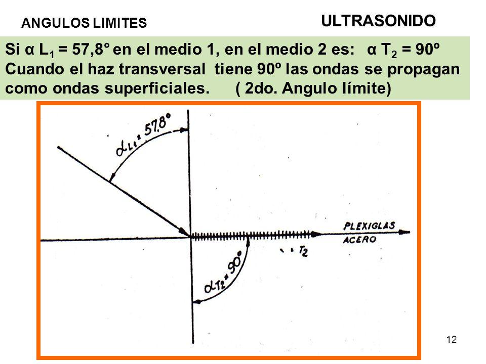 ULTRASONIDO ANGULOS LIMITES.