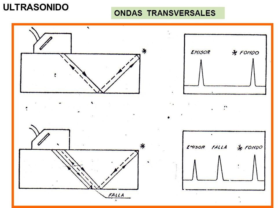 ULTRASONIDO ONDAS TRANSVERSALES