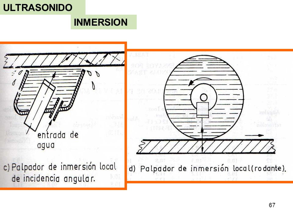 ULTRASONIDO INMERSION