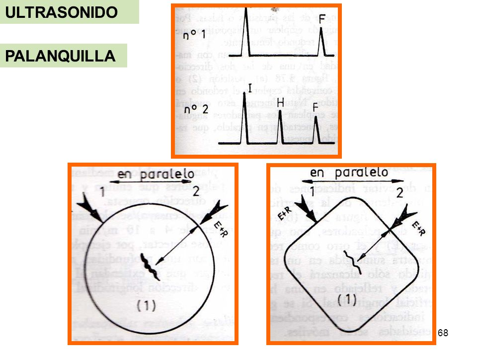 ULTRASONIDO PALANQUILLA