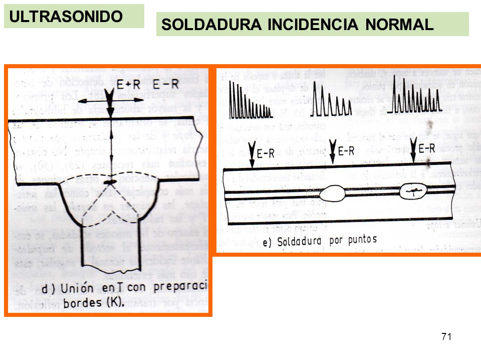 ULTRASONIDO SOLDADURA INCIDENCIA NORMAL