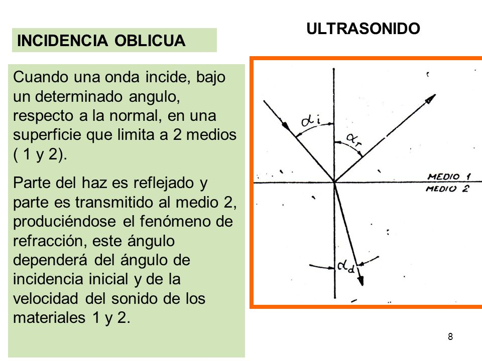 ULTRASONIDO INCIDENCIA OBLICUA.