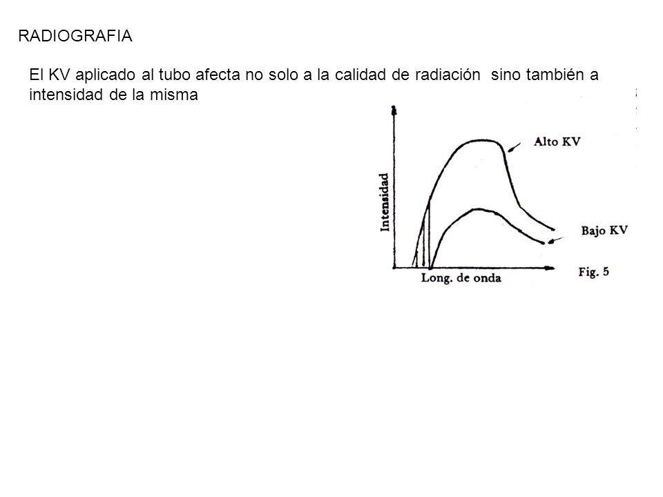 RADIOGRAFIA 24/03/2017. RADIOGRAFIA. El KV aplicado al tubo afecta no solo a la calidad de radiación sino también a intensidad de la misma.