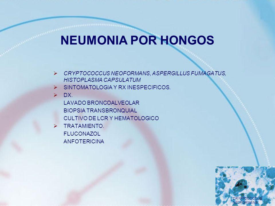 NEUMONIA POR HONGOS CRYPTOCOCCUS NEOFORMANS, ASPERGILLUS FUMAGATUS, HISTOPLASMA CAPSULATUM. SINTOMATOLOGIA Y RX INESPECIFICOS.