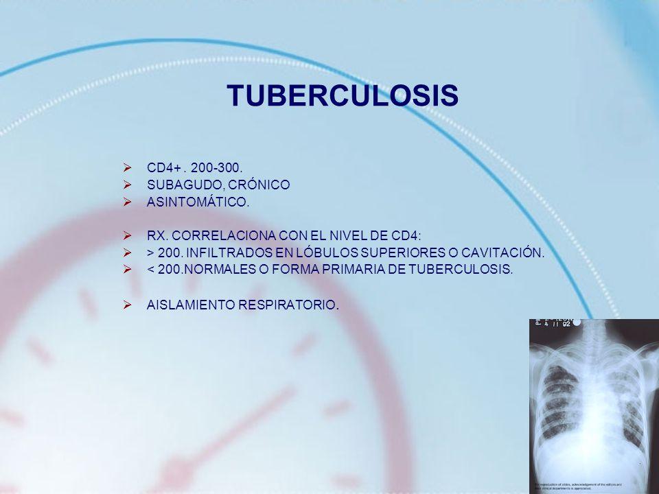 TUBERCULOSIS CD4+ . 200-300. SUBAGUDO, CRÓNICO ASINTOMÁTICO.