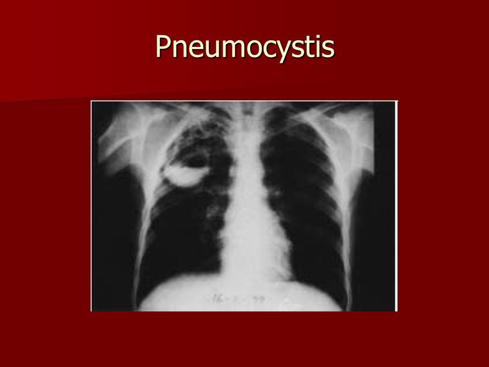 Pneumocystis