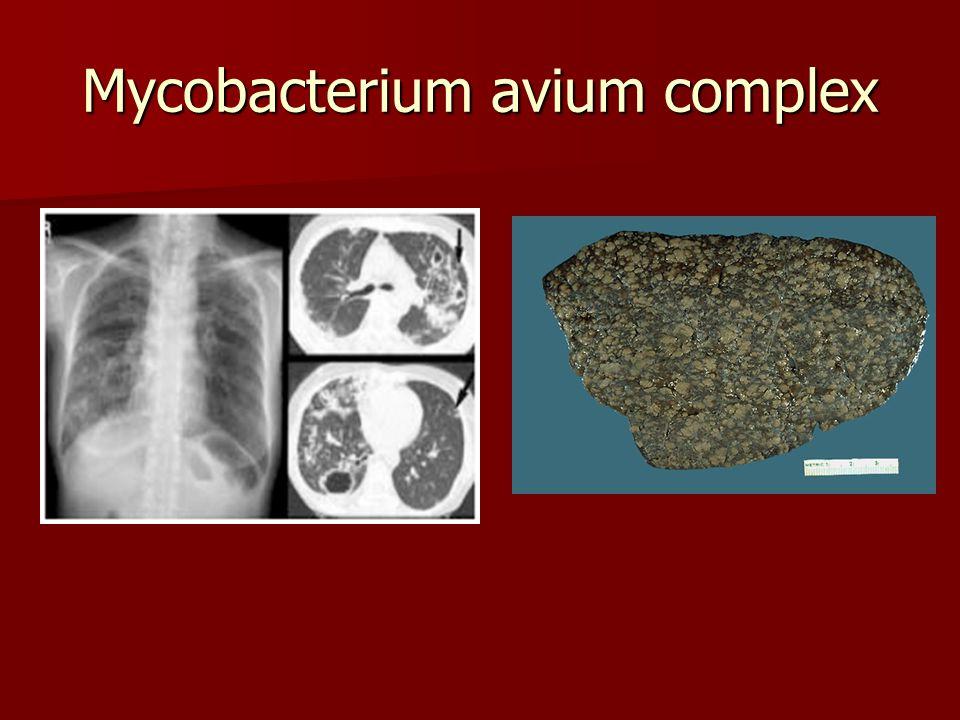 Mycobacterium avium complex